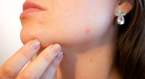Viktorija Mišura o važnosti terapije ožiljka